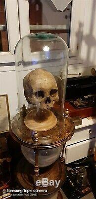 Antique XIXem child Medical Skull scientifique doctor Chester Stewart human bone